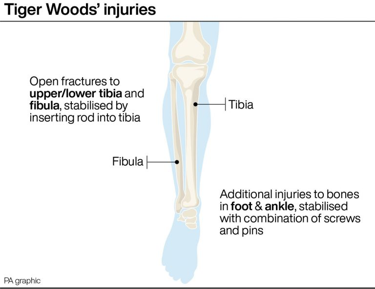 The injuries Woods suffered in his car crash (PA Graphics)